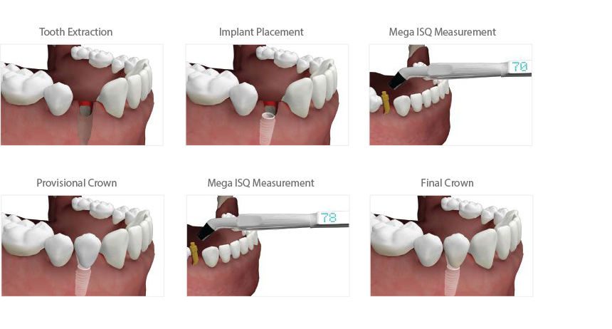 Dental Implants And All On Four Dental Implants In Pittsburgh Elevated Oral Implant Surgery